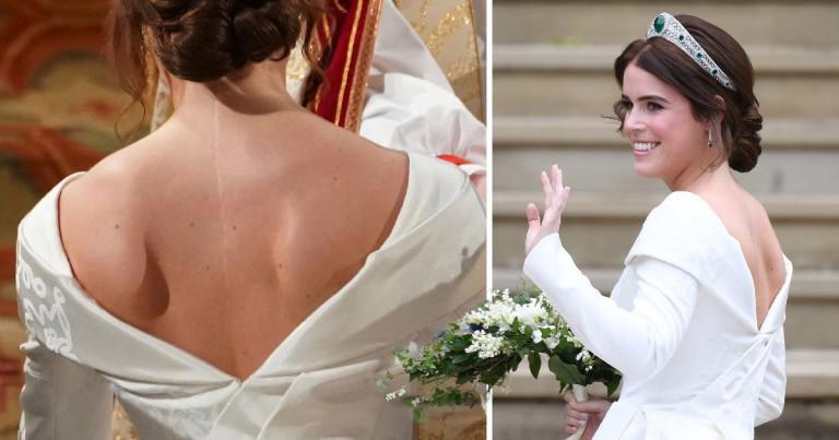 Princess Eugenie back scar