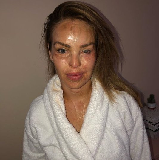 Katie Piper scars