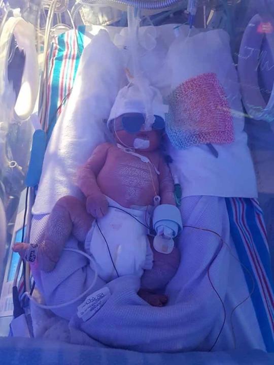 Henry in the newborn ICU