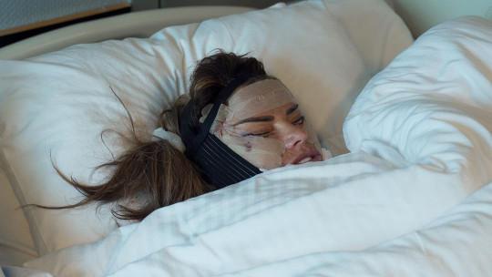 Katie Price wearing bandages