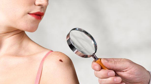 A woman getting a mole checked