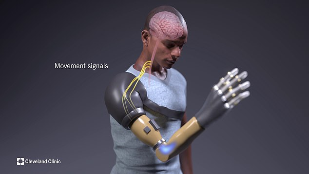 Her customised prosthetic is outfitted with a powerful computerised robotic touch system that allows her to feel sensation and movement as if it was coming from her missing hand. Her brain interprets the arm like it's her own
