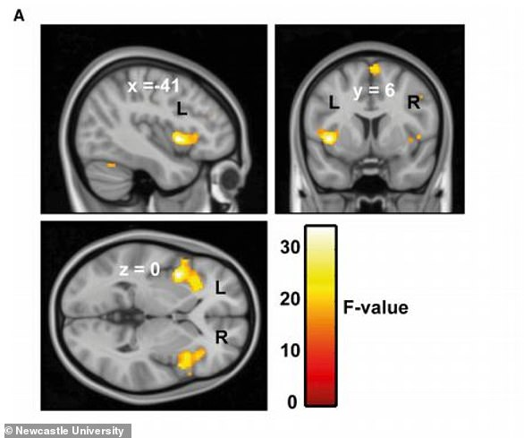 Scientists at Newcastle University discovered an increased connectivity between the auditory cortex and the motor control areas related to the face, mouth and throat in those suffering with misophonia