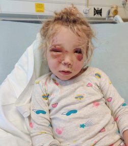 A LITTLE girl was left with life-threatening injuries after being kicked in the head by a horse while on a walk with her dad. Madison Roome was just two-years-old when the horrific freak accident left her fighting for her life in May last year. PIX: Madi injured TRIANGLE NEWS 0203 176 5581 // news@trianglenews.co.uk By Lottie Tiplady-Bishop With pix A LITTLE girl was left with life-threatening injuries after being kicked in the head by a horse while on a walk with her dad. Madison Roome was just two-years-old when the horrific freak accident left her fighting for her life in May last year. The toddler had been out for a walk with her dad, Alistair, 46, big brother Finnley, four, and a few of their friends. Shockingly, nobody saw the split-second accident take place - however medics said from the injuries sustained they could tell little Madi received the full force of the horse???s hoof to her tiny face. She was kicked by a horse being led down a bridleway at the end of the family's own road in Claygate, Surrey.