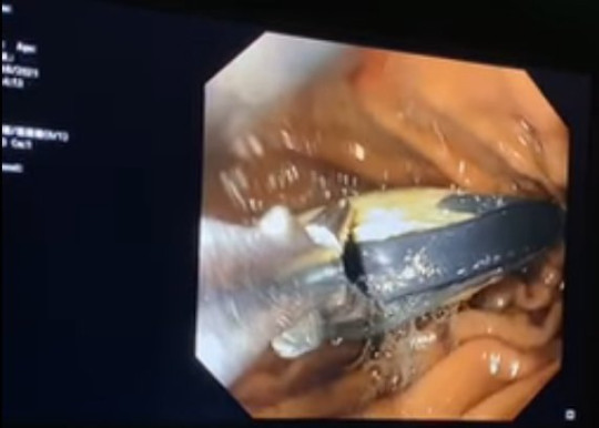 It was pulled out during an endoscopy