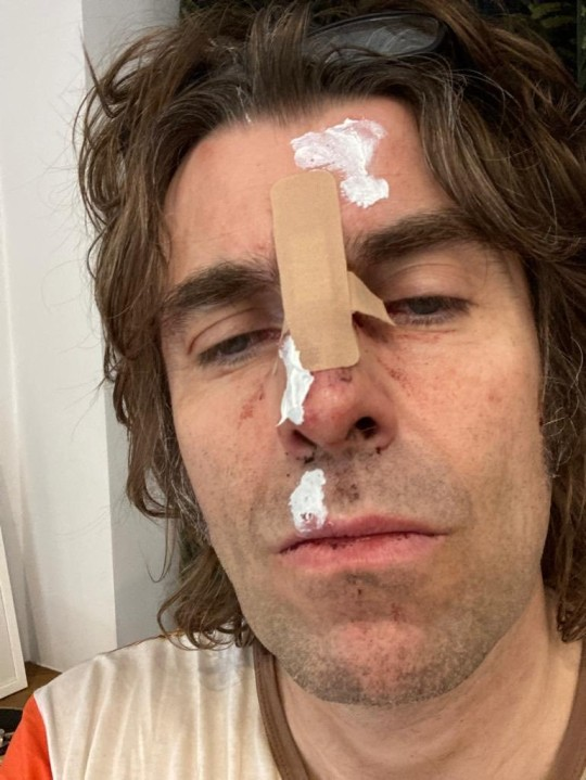 Liam Gallagher smashes face after falling out of helicopter