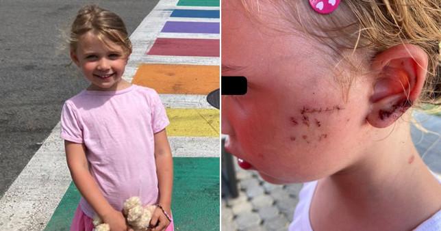 Elodie, smiling, Elodie's injuries.