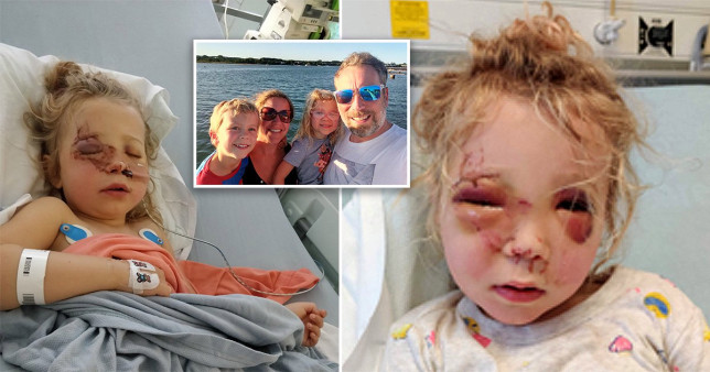 Madison Roome, two, received the full force of the horse's hoof in her face (Picture: Triangle News)