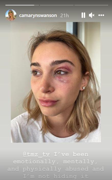 Tyga's ex Camaryn Swanson with black eye