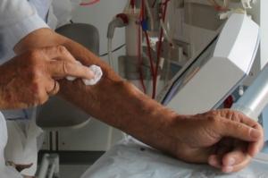 Dialyseadgangsveje
