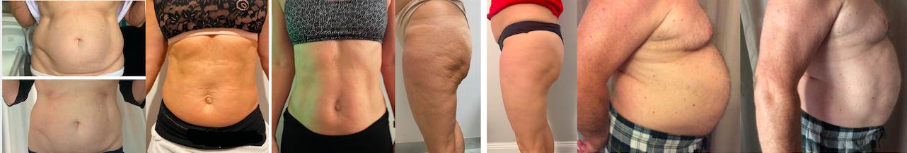 Fettreducering Muskeluppbyggnad Åtstramning mage Åtstramning rumpa emslim