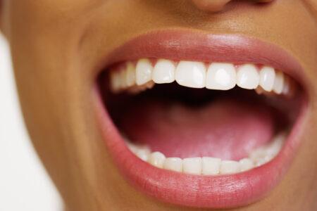 tips-voor-wittere-tanden