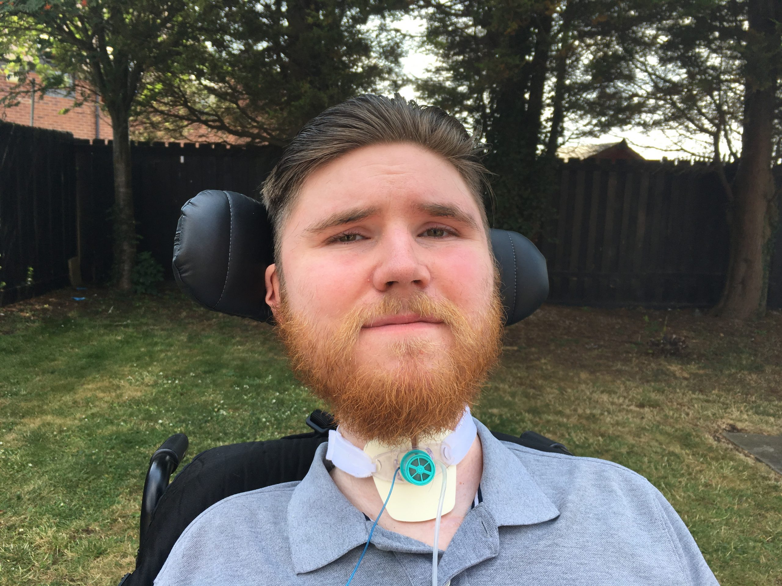 BOBBY SHEARER sitting outside with his tracheostomy showing