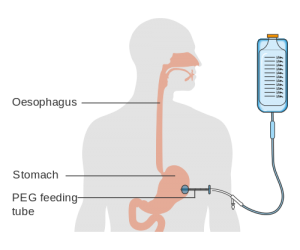 A diagram of a PEG feeding tube