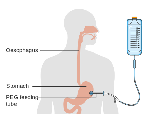 A diagram of a PEG feeding tube