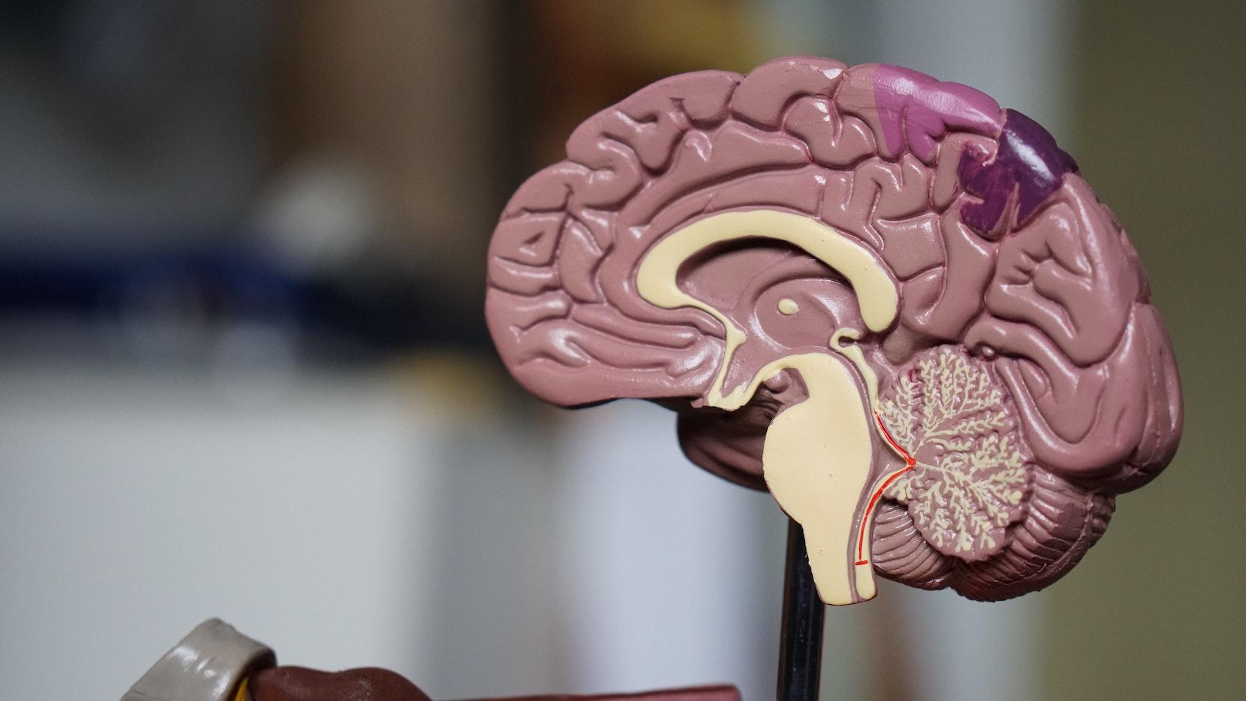 Hjerneskader kan erhvervet eller medfødte. Læs mere i bloggen