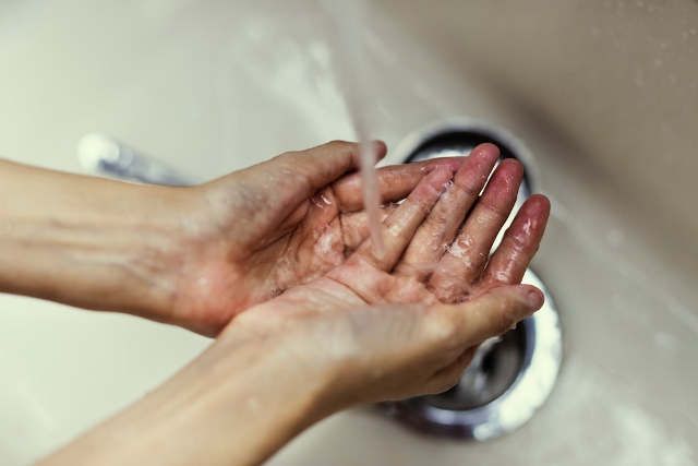 Hver femte får hudproblemer på jobbet