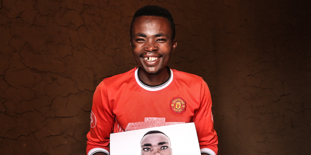 Claude's new smile after cleft surgery