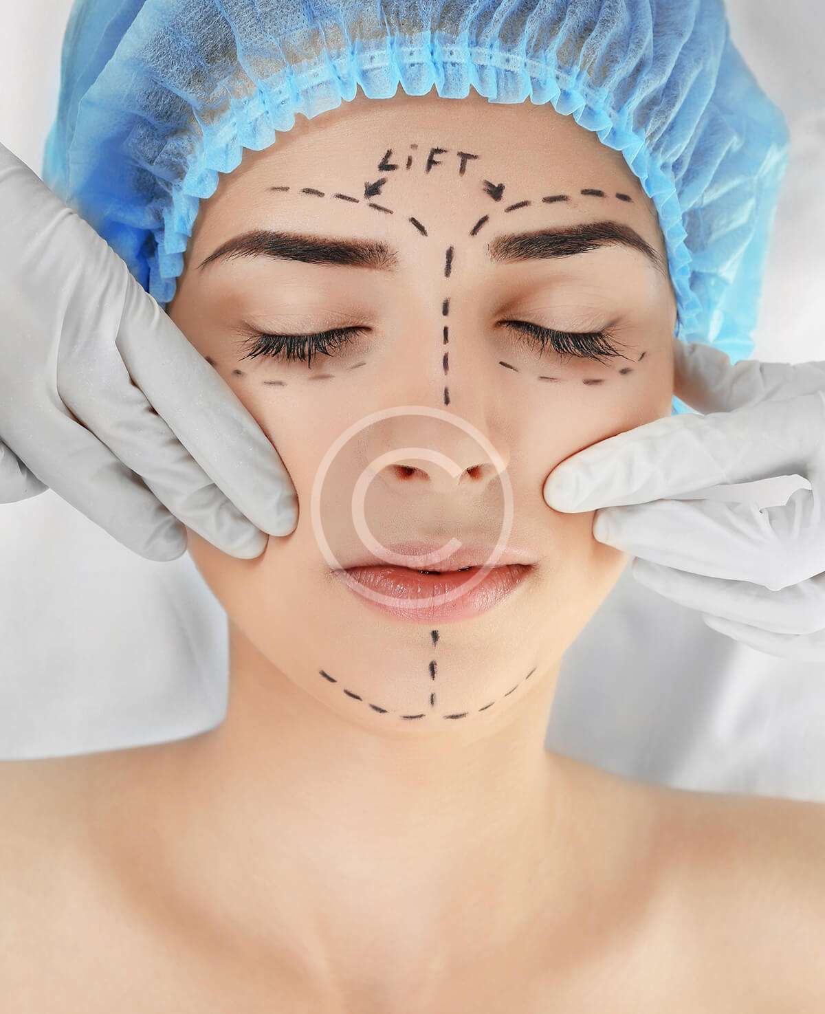 Botox Injections