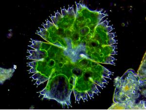 Micrasteria Alga under microscope.