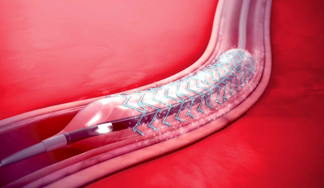 Safe Stents and Implants