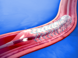 Stents and Implants
