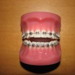 Fast tandställning