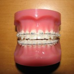 Vit tandställning