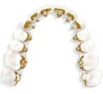 Incognito - Osynlig tandställning