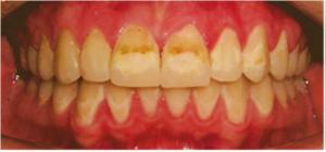 Slarvig tandborstning