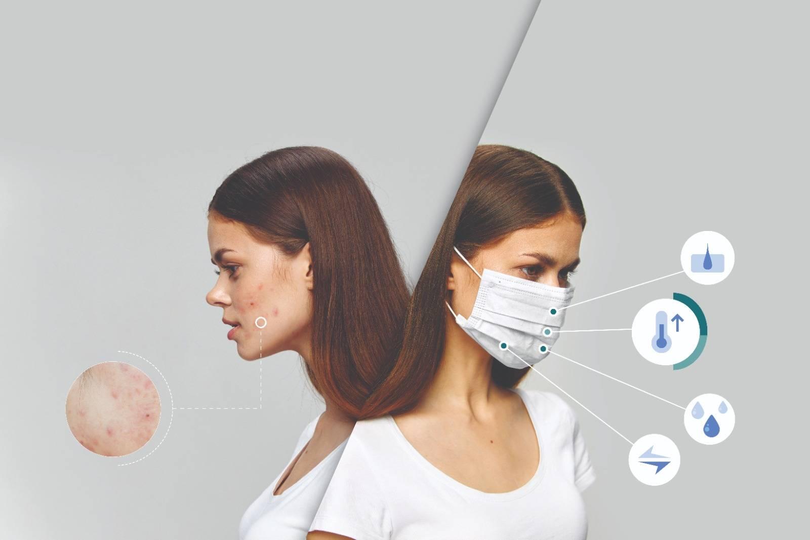 Coronavirus, Masks & Healthy Skin – SQOOM Skin Technology