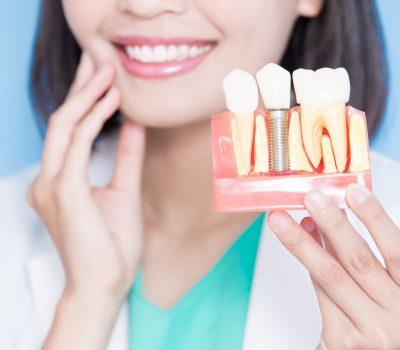 Nytt leende med tandimplantat