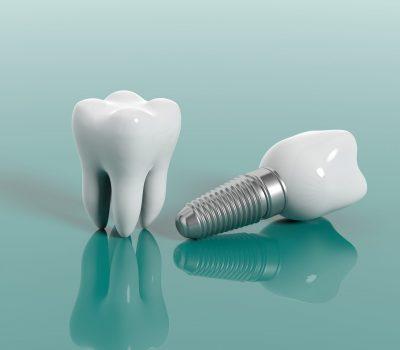 Bild på tandimplantat protes