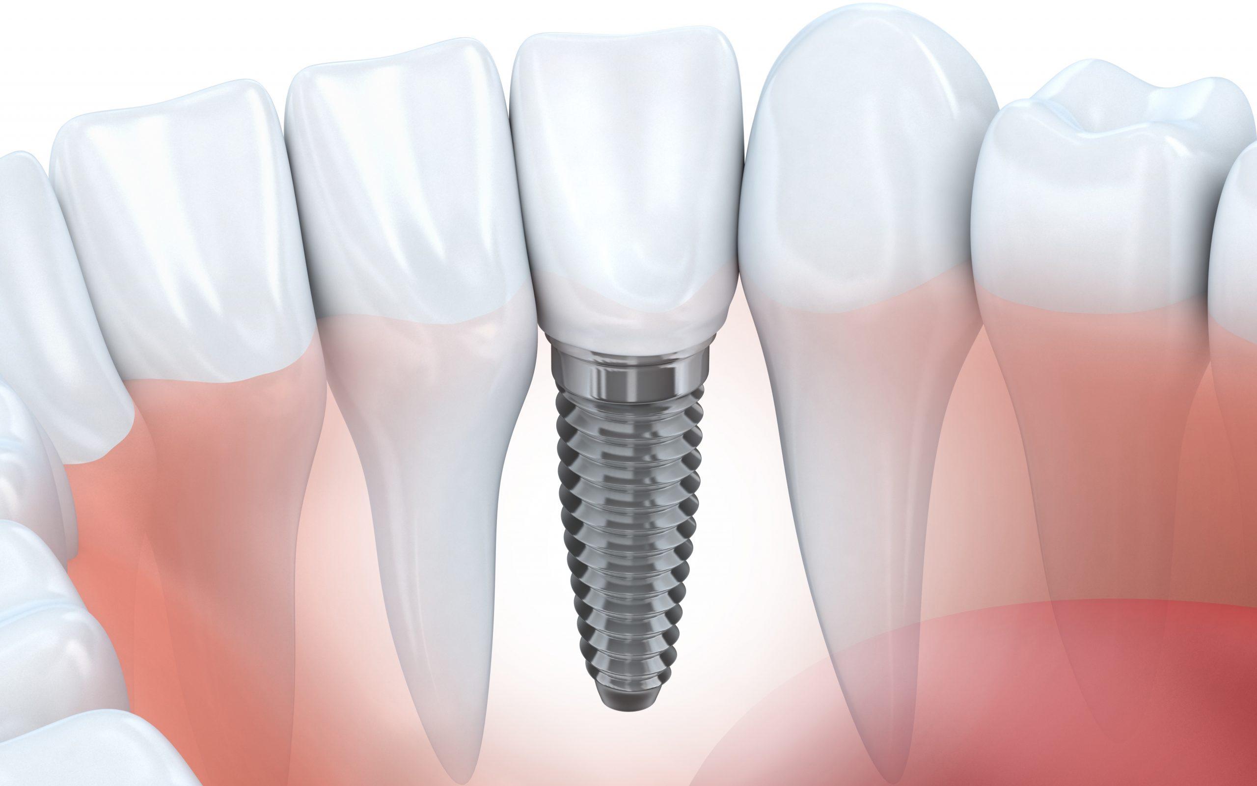 Tandimplantat privat tandläkare uppsala