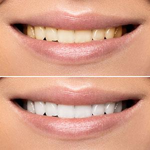 Bleka tänderna med led lampa