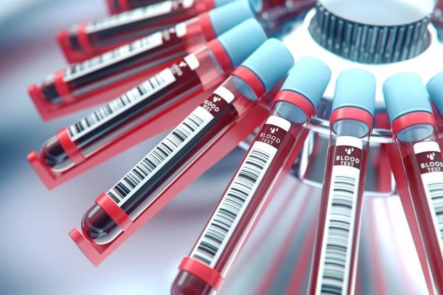 3D rendering of blood tests