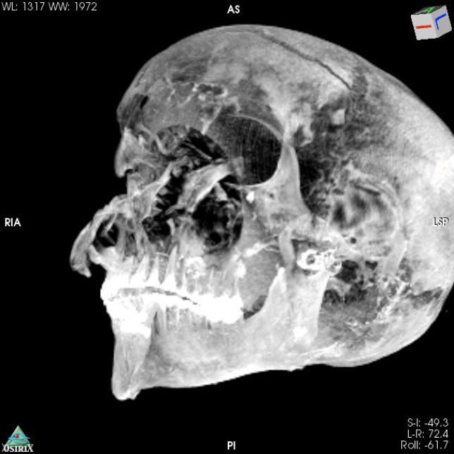 A 3D image of the pharaoh's skull. (Credits: Sahar Saleem / SWNS)