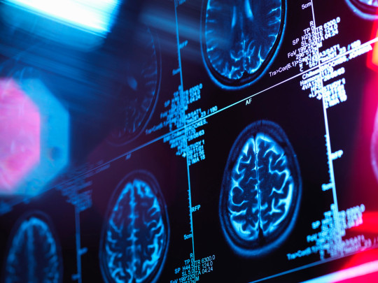 Brain scans taken before and after a Covid infection give some clues about the effects of the disease on our nervous system (Getty Images/Cultura RF)