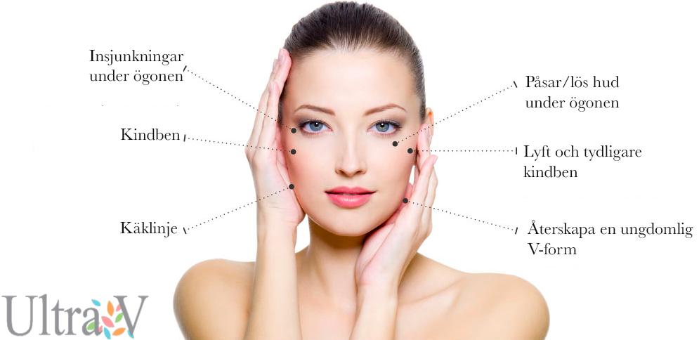 Ultra V Trådlyft behandlingsområden - ansikte
