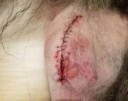 Ett operationssår med trasiga stygn där såret glipar med ca 5 mm. Trasiga stygn och sårinfektion är vanliga komplikationer.