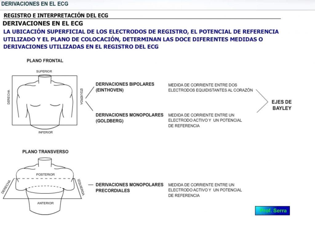 derivaciones en el ecg
