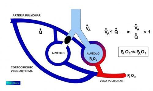 derivación arterio venosa