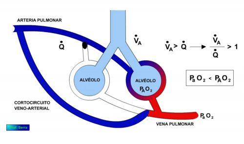 relación ventilación prefusión