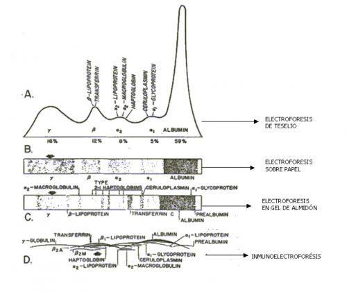 electroforeisis de las proteínas plasmáticas