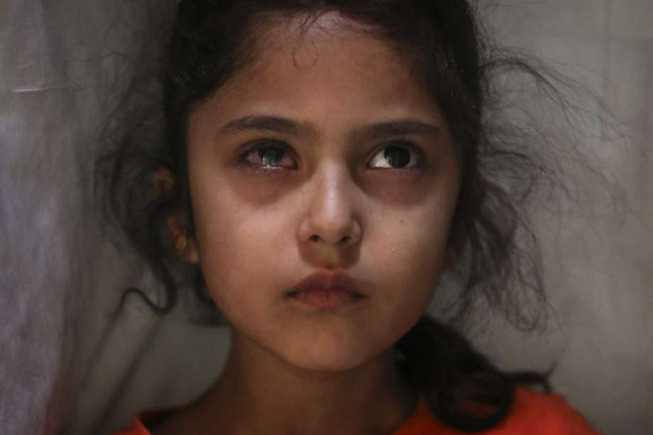 Six-year-old Muneefa Nazir, a Kashmiri girl whose right eye was hit by a marble ball shot allegedly by Indian Paramilitary soldiers on Aug. 12, stands outside her home in Srinagar, Indian controlled Kashmir, Sept. 17, 2019. The image was part of a series of photographs by Associated Press photographers which won the 2020 Pulitzer Prize for Feature Photography. Photo: Mukhtar Khan, AP / Associated Press