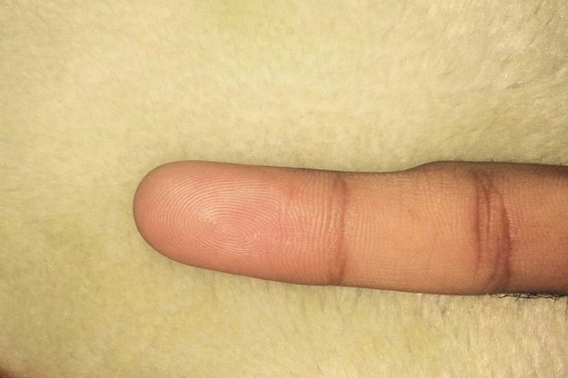 Pinky finger is caused when people use their smartphones too much