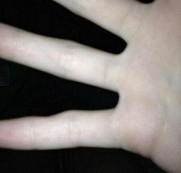 Social media users have posted images of their pinky fingers - which seem to have a slight dent in them