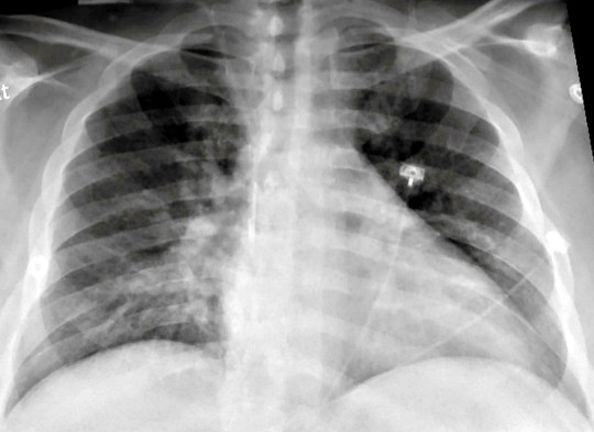 Chest X-ray of a SARS-CoV-2-positive patient exhibiting confusion and showing weakness on his left side shows pneumonia in the lower lungs.