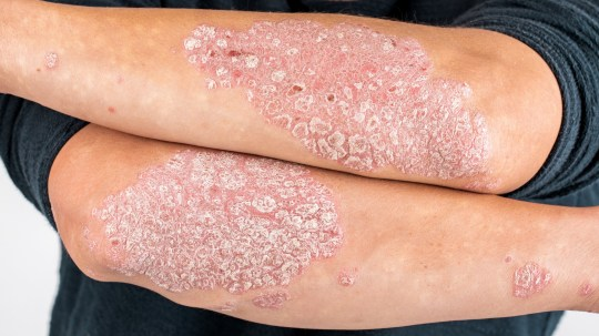 Man with psoriasis on his arms