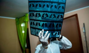 A doctor checks a coronavirus patient's x-ray on the eastern outskirts of Lima, amid the new coronavirus pandemic.